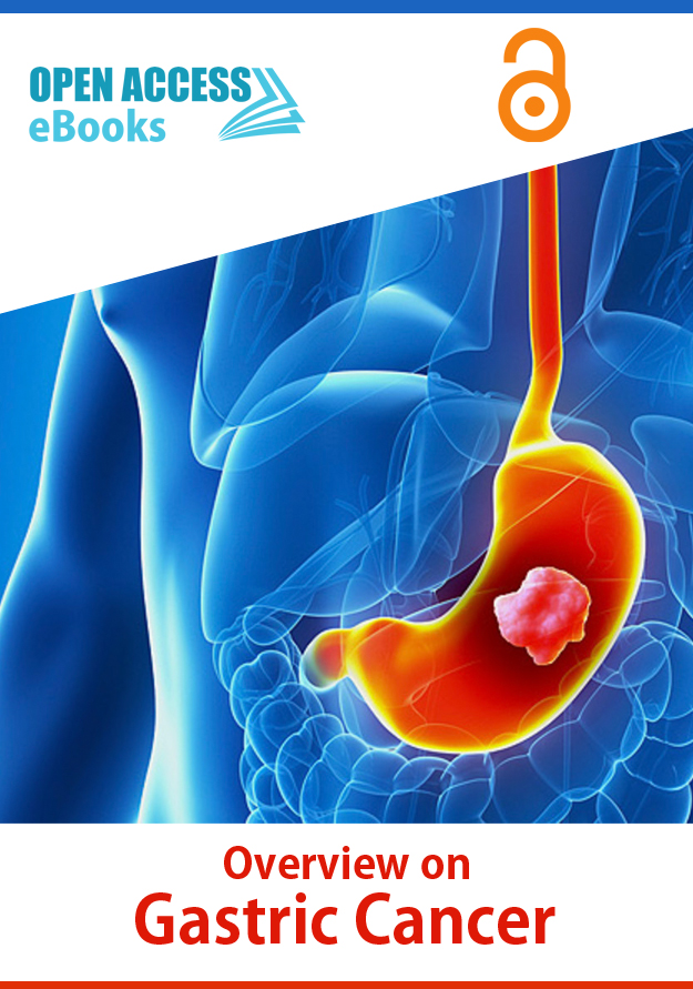 overview-on-gastric-cancer